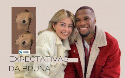 Reação ao simulador 3D Bruna Fortunato – Mamoplastia de aumento Drª Liliana Reis