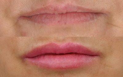 Código de barras nos lábios? Conheça a solução